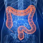3-reasons-to-get-a-colonoscopy-505x378