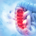 Colon cancer. Colon disease concept