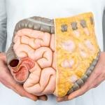 colon-infection_759