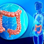 what-is-colon-infection_small
